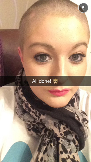 Sian shaved her head to raise money for the Miscarriage Association